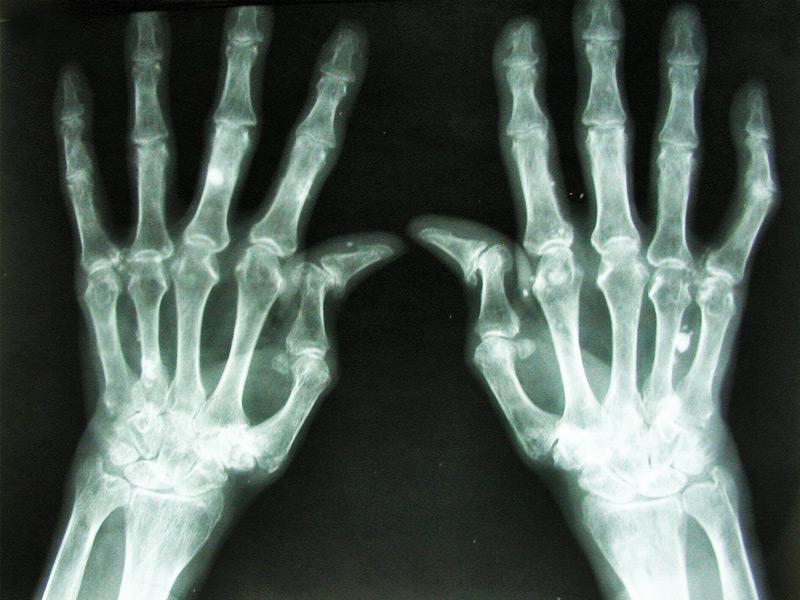 Ревматоидный артрит классификация