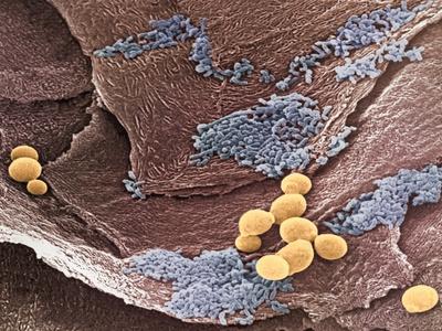 Кандидоз кожи бактерия