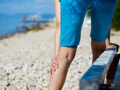 Болят вены на ногах локализация