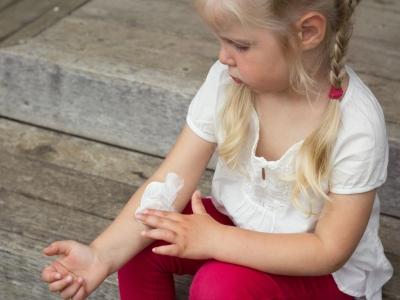 При правильном соблюдении правил применения в 99% случаев побочные эфекты не наблюдаются. Однако они возможны при длительном использовании. в детском возрасте