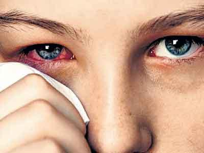 Лечение блефарита методы