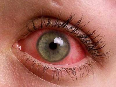 Тобрадекс мазь глазная показания