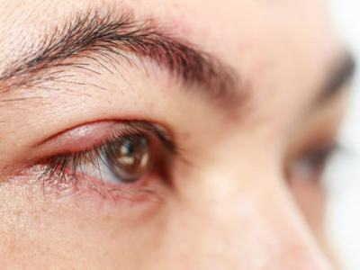 Лечение блефарита о патологии