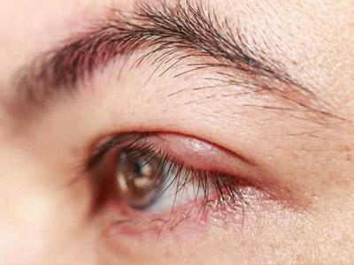 Тобрадекс мазь глазная побочные реакции