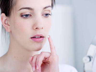 Повышенная негативная восприимчивость и реакция на любой компонент состава, а также поражения герпесом гениталий выступают противопоказаниями к терапии Ацикловир белупо кремом. применение