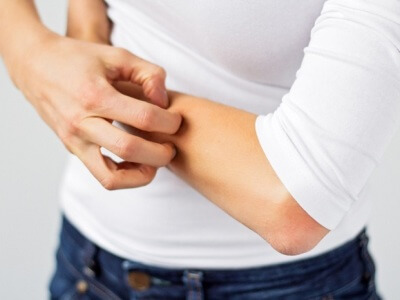 Лечение контактного дерматита народными thumbnail