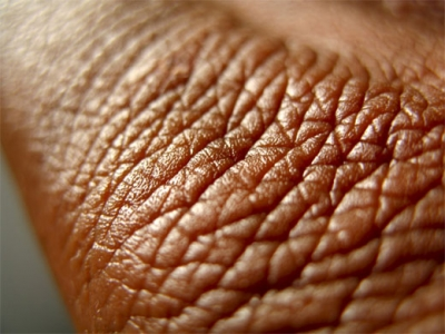 Ороговение кожи что это
