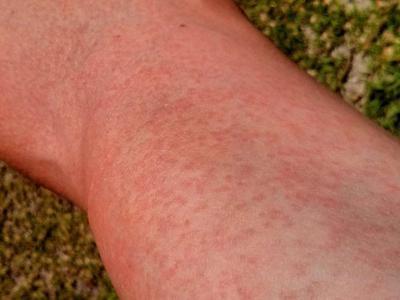Линкомицин мазь побочные эффекты