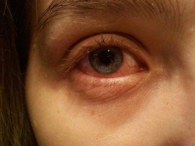 Гидрокортизон мазь глазная побочные эффекты