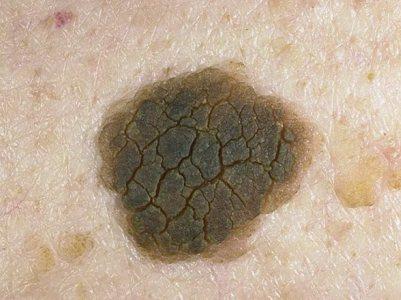 Кератоз кожи виды