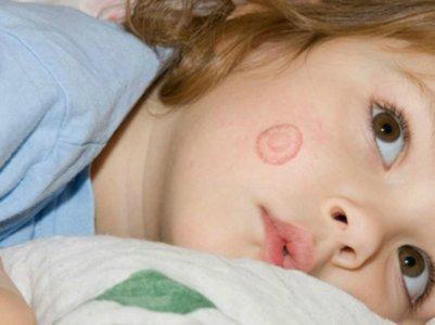 Лечение микроспории народными средствами у детей
