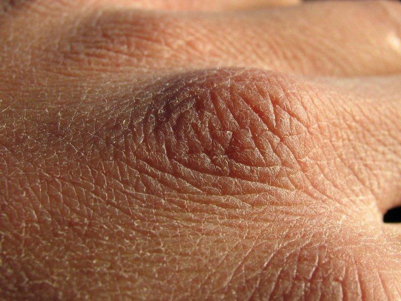 Ороговение кожи