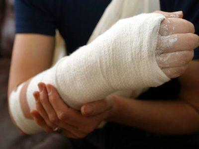 Патологические переломы – это нарушение целостности кости из-за аномальных процессов, протекающих в костной ткани. К причинам относятся заболевания, вызывающие ее разрежение и приводящее к хрупкости. симптомы