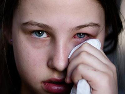 Трахома первые симптомы