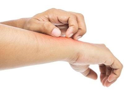Рекреол крем побочные эффекты